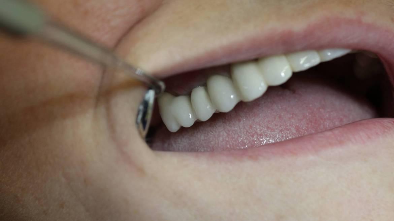 Punti ceramica pe implante